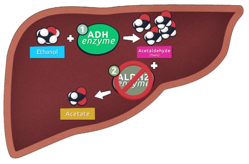 aldh2 deficient alcohol metabolism